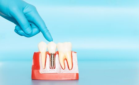 Plastic samples of dental implants compare with natural teeth for patients acknowledged the differences Of both types of teeth. To make decisions before beginning dental implant treatment. Standard-Bild - 133819793