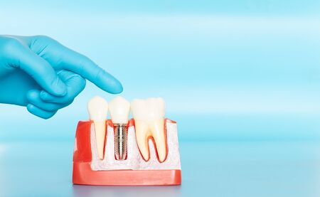 Plastic samples of dental implants compare with natural teeth for patients acknowledged the differences Of both types of teeth. To make decisions before beginning dental implant treatment. Standard-Bild - 133819796