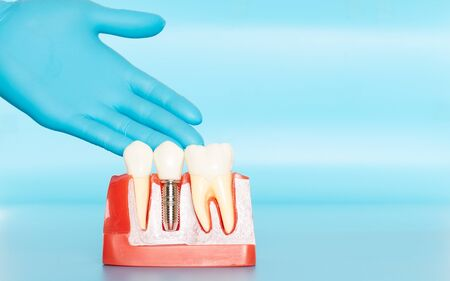 Plastic samples of dental implants compare with natural teeth for patients acknowledged the differences Of both types of teeth. To make decisions before beginning dental implant treatment. Standard-Bild - 133819797