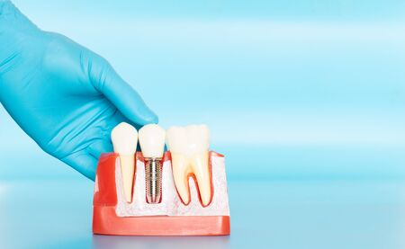 Plastic samples of dental implants compare with natural teeth for patients acknowledged the differences Of both types of teeth. To make decisions before beginning dental implant treatment. Standard-Bild - 133819800