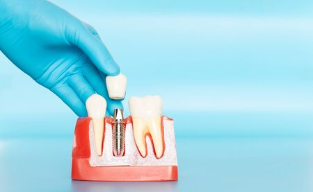 Plastic samples of dental implants compare with natural teeth for patients acknowledged the differences Of both types of teeth. To make decisions before beginning dental implant treatment. Standard-Bild - 133819799