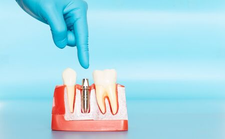 Plastic samples of dental implants compare with natural teeth for patients acknowledged the differences Of both types of teeth. To make decisions before beginning dental implant treatment. Standard-Bild - 133819807