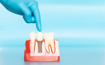 Plastic samples of dental implants compare with natural teeth for patients acknowledged the differences Of both types of teeth. To make decisions before beginning dental implant treatment. Standard-Bild - 133819808
