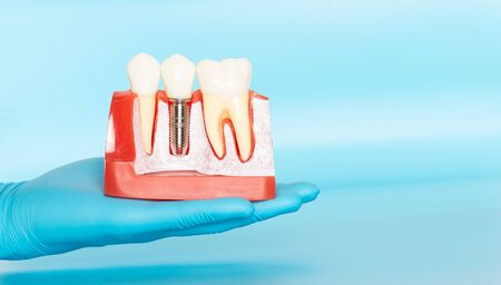 Plastic samples of dental implants compare with natural teeth for patients acknowledged the differences Of both types of teeth. To make decisions before beginning dental implant treatment. Standard-Bild - 133819809