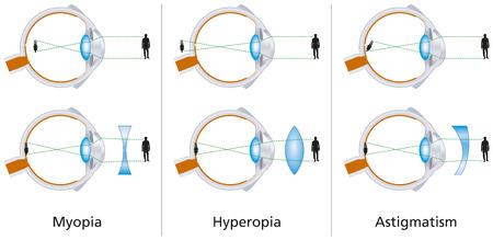 Défauts visuels - myopie, l'hypermétropie et l'astigmatisme Banque d'images - 22773494