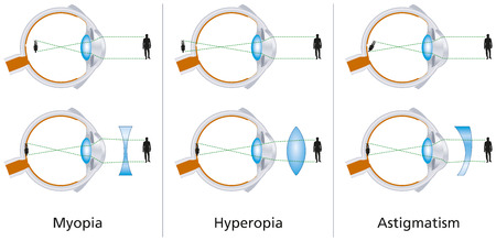 Defectos visuales - miopía, hipermetropía y astigmatismo Foto de archivo - 22773494