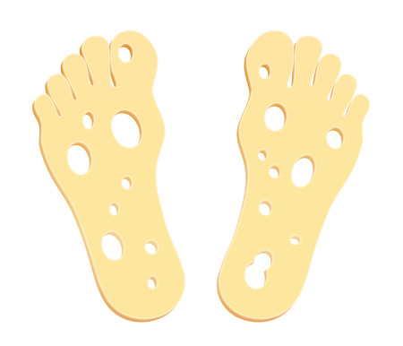 Smelly feet symbolically figured with two cheese slices  Vector illustration on white background  Vector