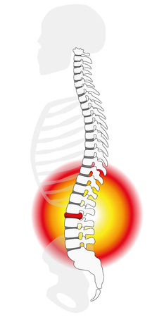 intervertebral: Spinal disc herniation or prolapse at a human vertebral column - profile view. Isolated vector illustration on white background.