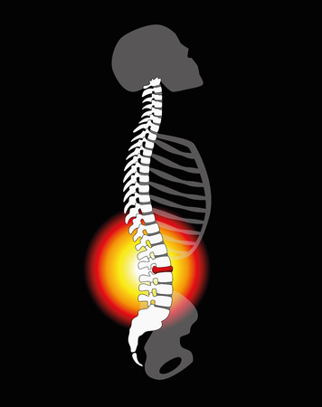 spinal: Back pain - spinal disc herniation or prolapse at a human vertebral column - profile view. illustration on black background.