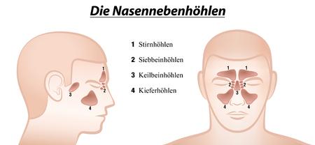 Paranasal sinuses - anterior and lateral view
