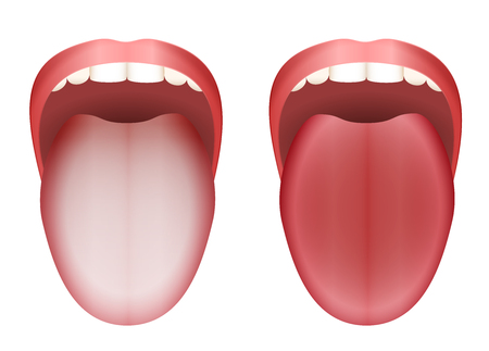 fungal disease: Coated white tongue and clean healthy tongue by comparison - isolated vector illustration on white background. Illustration
