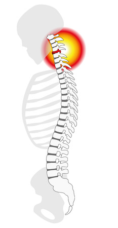 Neck pain - spinal disc herniation or prolapse at a human cervical vertebrae - profile view. Isolated vector illustration on white background.