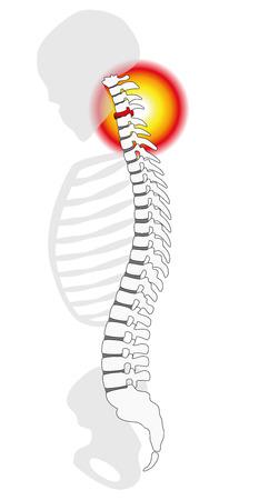 Nekpijn - hernia van de wervelkolom of prolaps bij een menselijke cervicale wervel - profielweergave. Geïsoleerde vectorillustratie op witte achtergrond. Vector Illustratie
