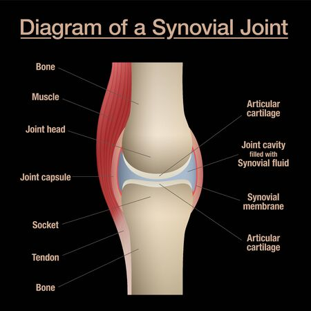 Synovial joint diagram. Labeled anatomy chart with two bones, articular cartilage, joint cavity, synovial fluid, muscle and tendon. Isolated vector illustration on black.