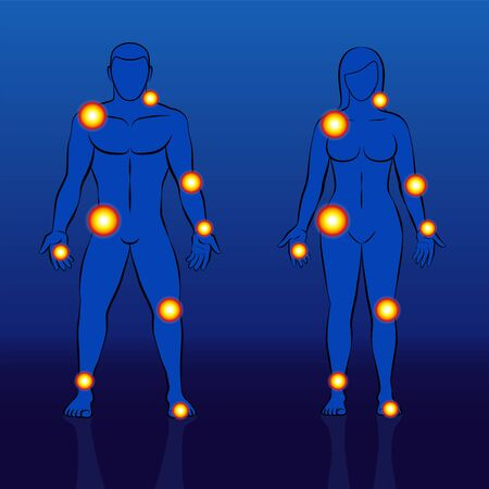 Joint and muscle pain of men and women. Nude couple with overview of aching parts. Schematic vector illustration on blue background.
