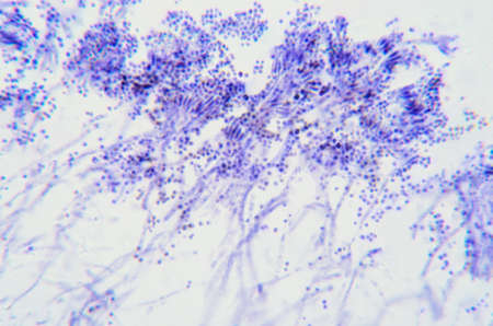 Penicillium branches, ascomycetous fungi under the microscope. To humans ascomycetes are a source of medicinal compounds, like antibiotics, for fermenting bread, alcoholic beverages and cheese. Photo.