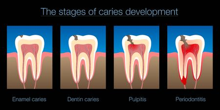 Tooth decay, stages of caries development, enamel and dentin caries, pulpitis and periodontitis. Isolated vector illustration on black background.