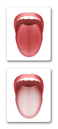 Clean healthy tongue and coated white tongue by comparison - isolated vector illustration on white background.
