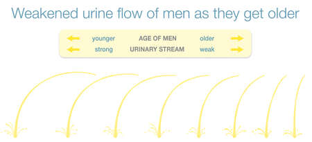 Weakened urinary flow of men as they get older. Urine stream samples of young and old men with strong an weak urinary stream as an indicator of enlarged prostate. Vector Illustration