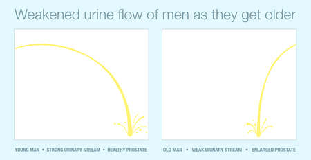 Strong urine stream of young man with healthy prostate and stream of old man with enlarged prostate in comparison. Weakened urinary flow of men as they get older. Vector illustration.