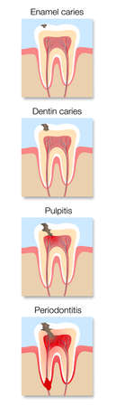 Caries development infographic, stages with cross section of tooth decay with enamel and dentin caries, pulpitis and periodontitis. Vector illustration on white.