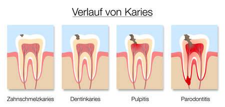 Caries stages infographic, german labeling, development of tooth decay with enamel and dentin caries, pulpitis and periodontitis. Vector illustration on white.
