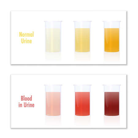 Blood in urine and normal urine in specimen cups, as comparison for laboratory examination and medical diagnosis of various urological diseases. Infographic vector illustration on white. Illustration