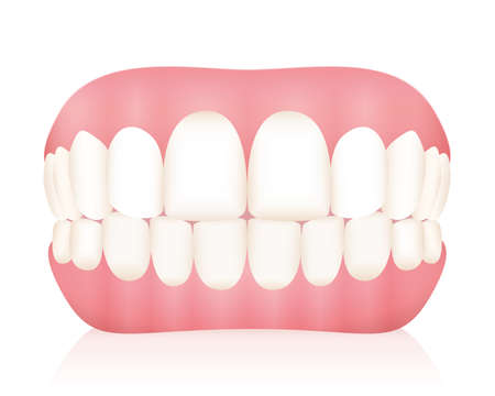 Dentures. False teeth. Isolated vector illustration on white background. Ilustração