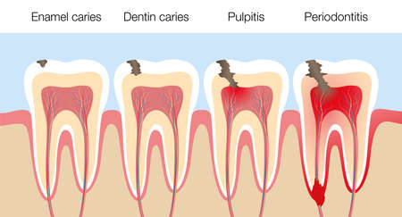 Teeth with caries stages, development of tooth decay with enamel and dentin caries, pulpitis and periodontitis. Vector illustration on white background. Vector Illustratie
