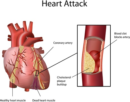 hartaanval: Heart Attack. Cholesterol plaque opgebouwd in slagader (atherosclerose). Illustratie met annotatie op een witte achtergrond.