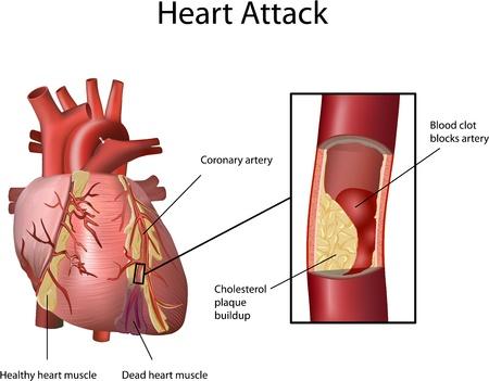 Heart Attack. Cholesterol plaque opgebouwd in slagader (atherosclerose). Illustratie met annotatie op een witte achtergrond.