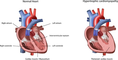 ventricle: Heart Problem Hypertrophic Cardiomyopathy Illustration. The heart problem caused by thickened cardiac muscle  myocardium in left ventricle.  Illustration