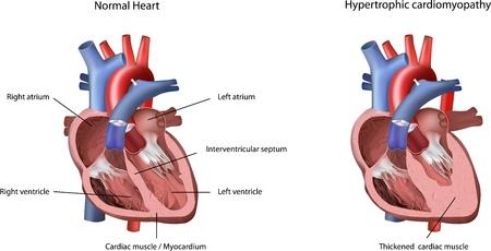 Herzproblem hypertrophe Kardiomyopathie Illustration. Das Problem mit dem Herzen von verdickten Herzmuskel / Myokard im linken Ventrikel verursacht.