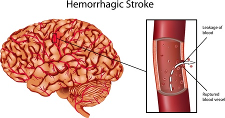 hypertension: Brain Stroke Illustration. A illustration of Hemorrhagic Stroke.