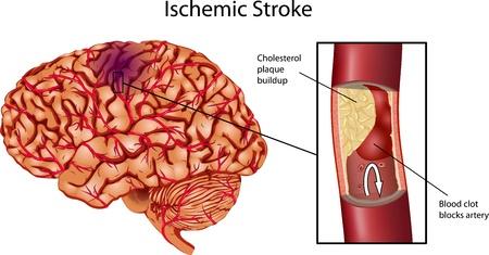 Brain Stroke. Een illustratie van ischemische beroerte. Vector Illustratie