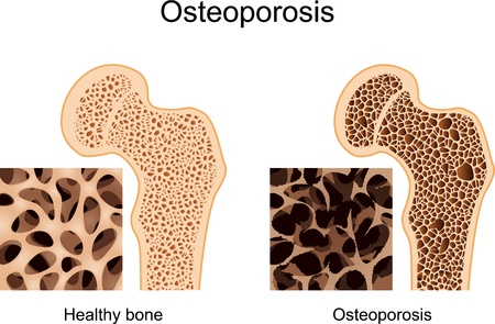 Osteoporose Vektorgrafik