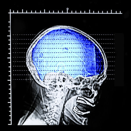 x rays negative: X ray film of skull lateral