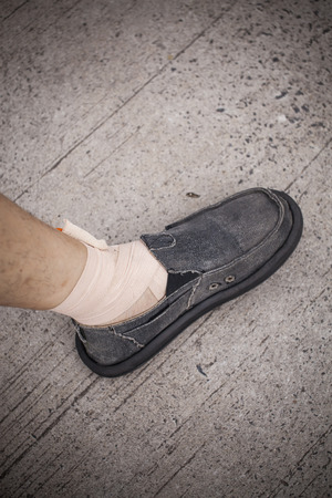 ankle strap: Foot and Ankle injured. Stock Photo
