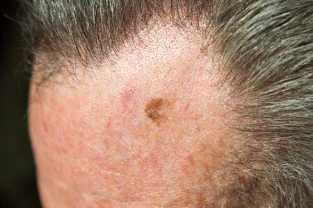 Lentigo maligna on forehead of man