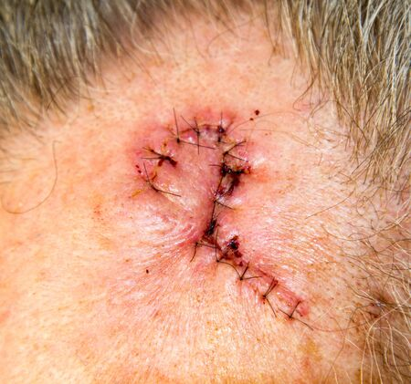 Sutures in forehead of 62 year old man after removal of lentigo maligna