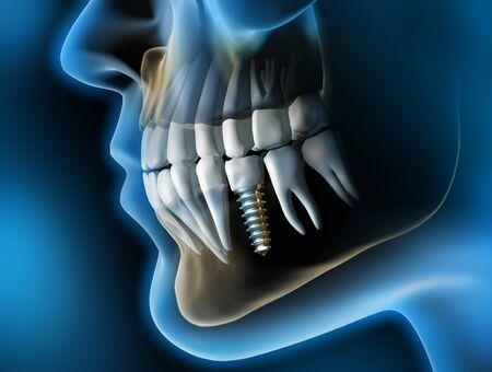 Head with dental implant - 3D illustration Standard-Bild - 125508050
