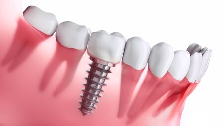 Closeup of dental implant xray - 3D illustration