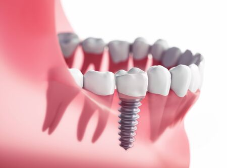 Closeup of dental implant xray - 3D illustration