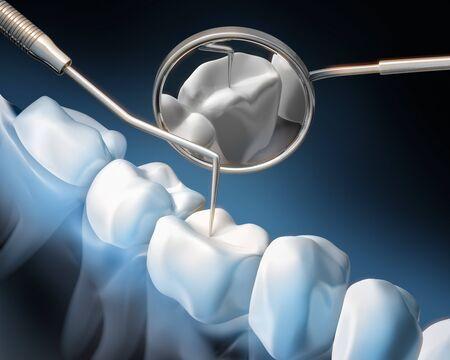 Dental examination - prevention - dental hygiene