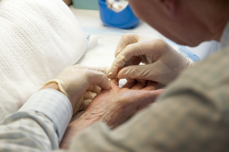 Dupuvtrens contracture treatment Stock Photo - 20779069