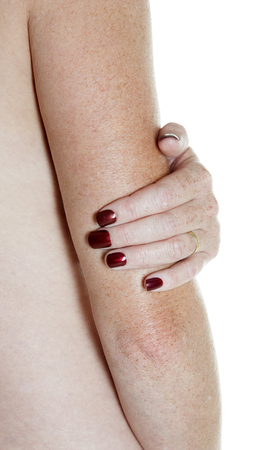 Womans hand holding arm above elbow Stock Photo