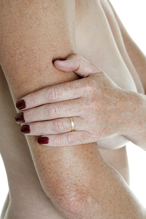 holding arm: Womans hand holding arm above elbow Stock Photo