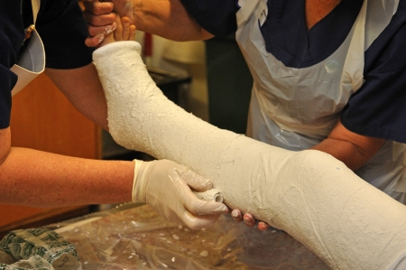 plaster leg cast: nurses apply a plaster cast to a boys broken leg  Stock Photo