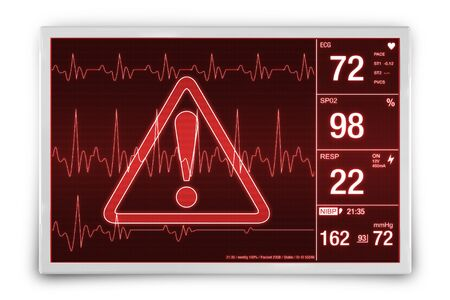 pulsing: Heart Rate Alarm. Medical Device Isolated on White Concept Illustration.