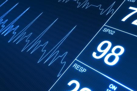 corazones azules: Heart Rate Monitor Ilustraci�n. Concepto de Tecnolog�a de la Salud